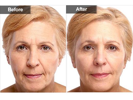 side effects of cosmetics pdf