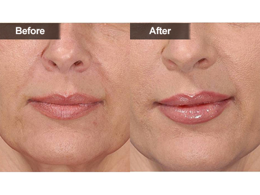 How Long Does Juvederm Typically Last | American Voter