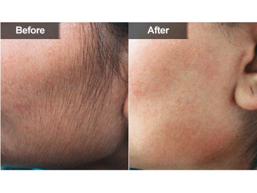 Facial hair removal virginia