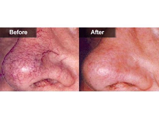Laser surgery how much is laser removal cost of does for How long does it take to get a tattoo removed