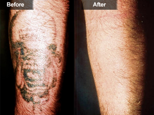 tattoo removal light shark tank iron blog