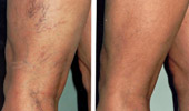 Leg Vein Treatment (Sclerotherapy)