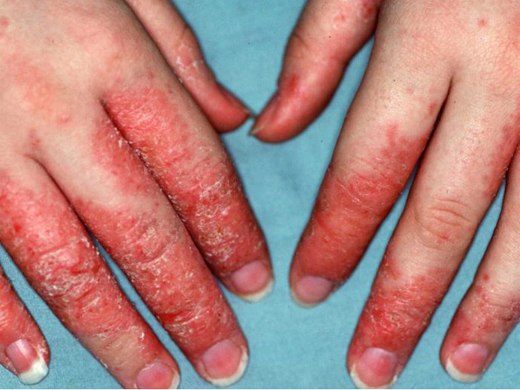 Eczema/Atopic Dermatitis | McLean & Woodbridge VA