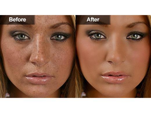 Hyperpigmentation  amp  MelasmaHyperpigmentation Face Before And After