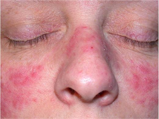 Acne rosacea treatment guidelines