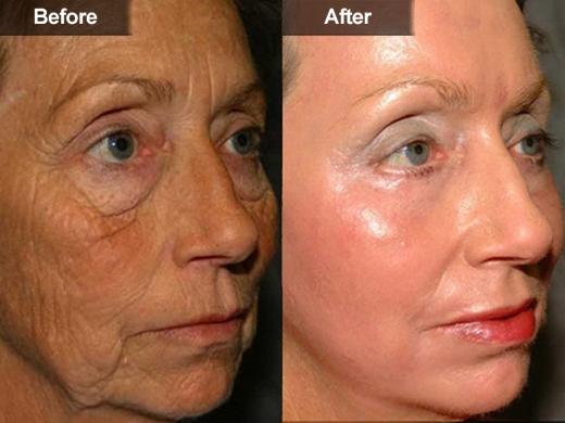Age & Brown Spots Removal | McLean VA, Woodbridge, VA