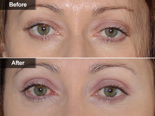 TBlepharoplasty Eyelid Lift | Mclean, Woodbridge, VA | Skin