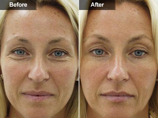 Botox In Mclean Va Amp Woodbridge Va Skin Amp Laser Surgery