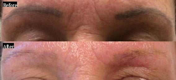 Permanent Make-Up Tattoo Removal