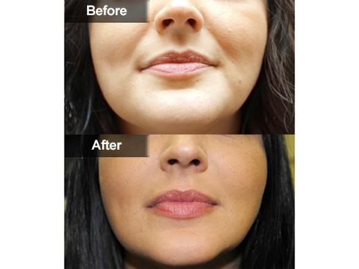 Juvederm   Mclean, Woodbridge VA   Skin & Laser Surgery Center