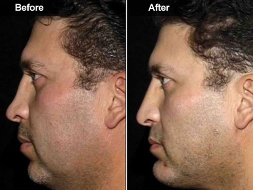 Radiesse | McLean, Woodbridge VA | Skin & Laser Surgery