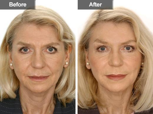 Restylane Mclean Woodbridge Va Skin Amp Laser Surgery
