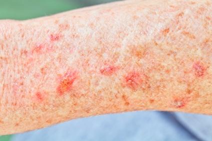 Skin Cancer Overview Archives Mclean Woodbridge Va Skin Laser Dermatology Center