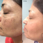 Age Amp Brown Spots Removal Mclean Va Woodbridge Va