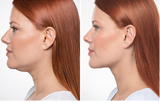 Double Chin Reduction – KYBELLA