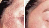 Age & Brown Spots Removal