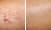 Red Spots & Vein Removal
