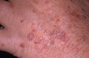 What are actinic keratoses?