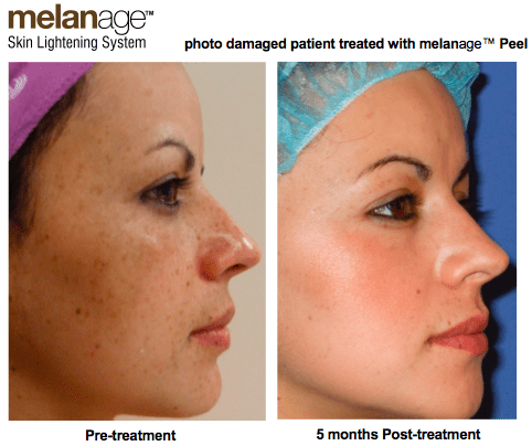 Melanage Ultra Peel for Melasma and Brown Spots