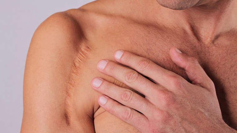 Non-Surgical Scar Treatment