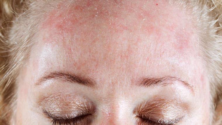 Seborrheic Dermatitis (Flaky/itchy skin)