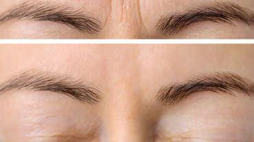 Lines between the Eyebrows