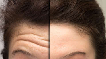 Forehead Lines Treatment