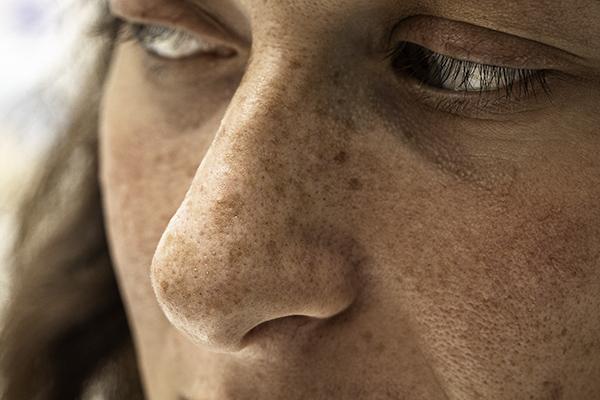 Sun Freckles (ephelides)